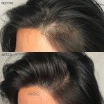 SMP Women Hair Thinning Treatment
